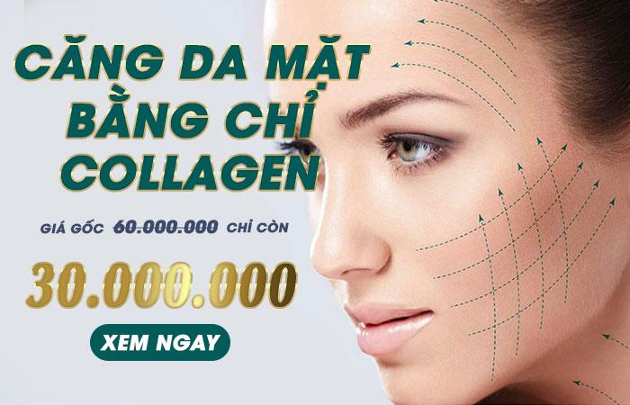 Căng Da Mặt Bằng Chỉ Collagen - Đánh Bay Những Vết Nhăn Nheo