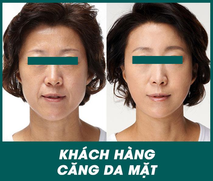 Hình ảnh khách hàng căng da mặt